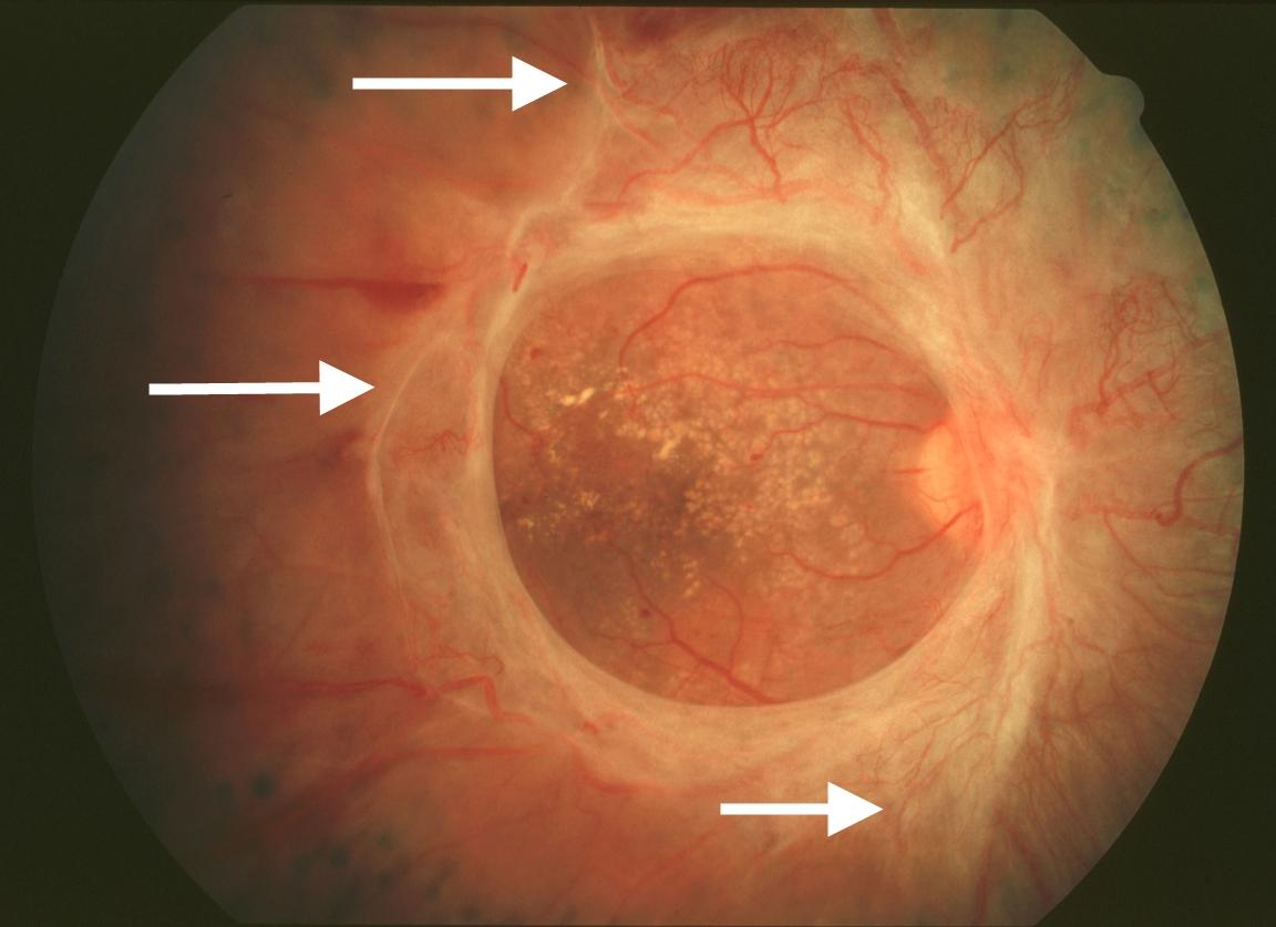 Разрыв сосудистой оболочки глаза фото